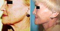 Female Patient Who Underwent A Facelift With Dr. Steven M. Lynch, MD, Albany Plastic Surgeon