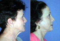 Neck Lift Surgery With Doctor Tom J. Pousti, MD, FACS, San Diego Plastic Surgeon