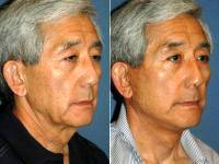 Signature Facelift On A Man By Dr Michael R. Menachof, MD, Greenwood Village Facial Plastic Surgeon